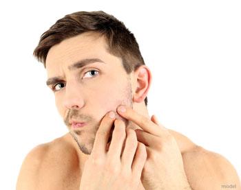 Don't Pop Pimples   Call Nima Skin Institute   312 266 NIMA
