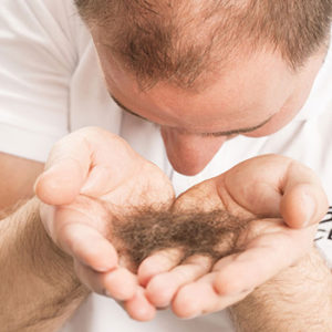 PRP for hairloss