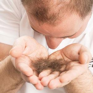 PRP for hairloss