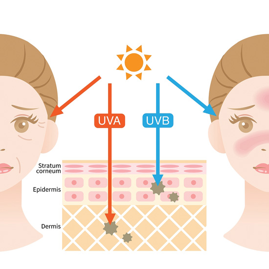 Using sunscreen of at least SPF 30 everyday—rain or shine, summer or winter—is extremely important.  Talk with Chicago's Nima Skin Institute!