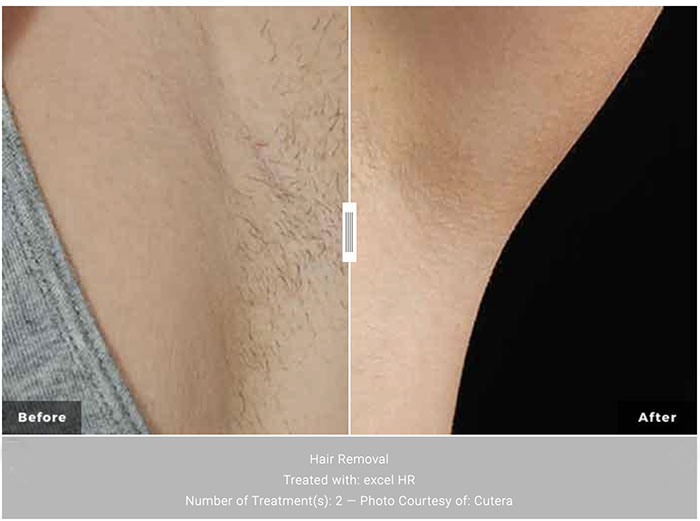 Cutera Laser Hair Removal, available at Chicago dermatolgy's NIMA Skin Institute