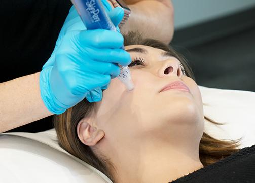 Nima Skin Institute is pleased to offer microneedling using the SkinPen II