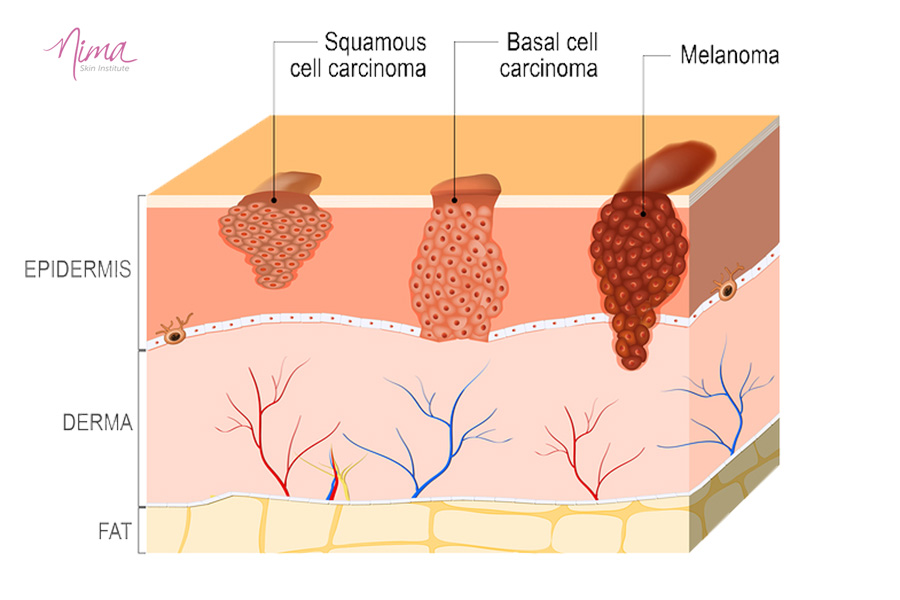 Graphic illustrating skin and types of skin cancer
