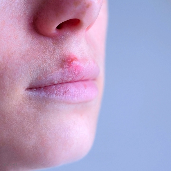 Photo of person with a cold sore on upper lip. treatments are possible from Chicago Dermatologist Nima Skin Institute