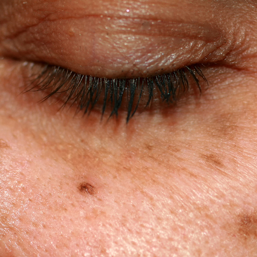 Photo of eye with dark spots, also known as hyperpigmentation, on the surrounding skin.