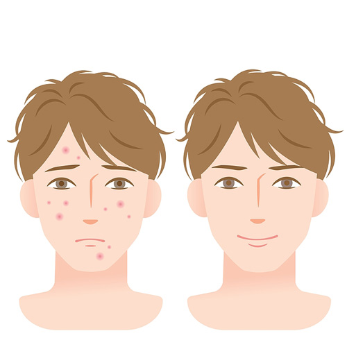 Illustration of young man with acne on left image and clear skin on the right, illustrating how acne can be cleared with the right treatment