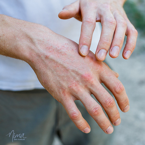 Photo of a man's hands with itchy rash, demonstrating contact dermatitis. See Chicago dermatologist Dr. Nilam Amin for solutions.