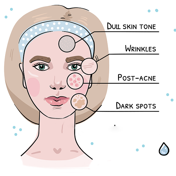 Illustration of areas and issues chemical peels can help, including dull skin tone, wrinkles, post-acne, and dark spots.